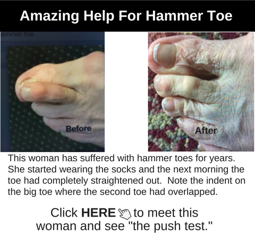 HammerToe Before and After
